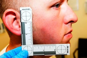 St. Louis County Prosecutor's Office photo shows Ferguson, Missouri police officer Darren Wilson photo taken shortly after August 9, 2014 shooting of Michael Brown, presented to the grand jury